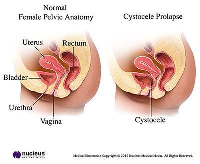 Urine zakt weg naar het laagste punt, bij de cystokele(=blaasverzakking) blijft er steeds een hoeveelheid urine achter.